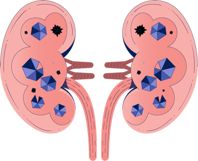 Oxalate in Kidneys Illustration