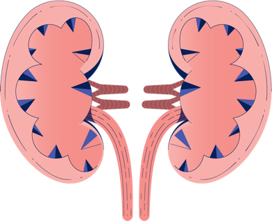 Progressive Kidney Damage Illustration